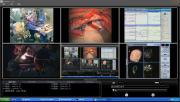 Reach - rozwiązania dla medycyny ( szpitale - sale operacyjne )